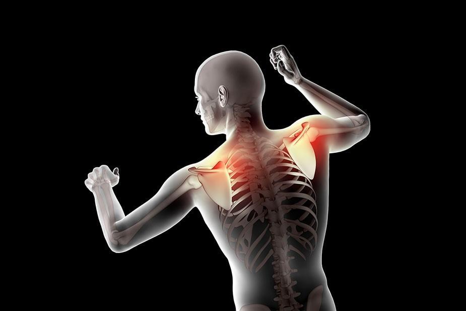 Bol između lopatica i kako ga se rešiti