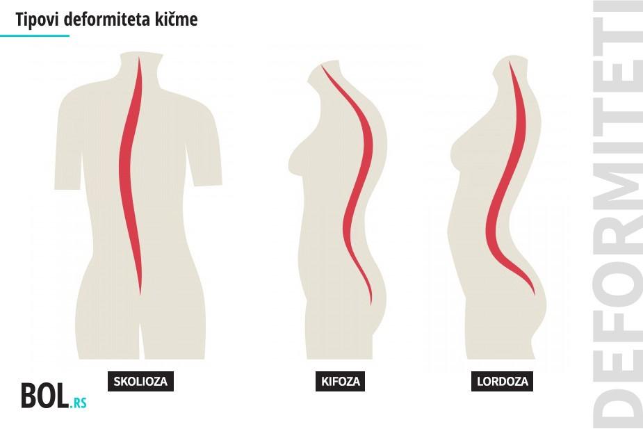 Tipovi deformiteta kičme