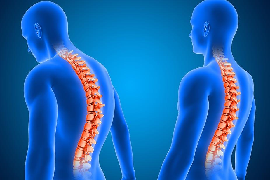 Kifoza: simptomi, dijagnoza, lečenje i prevencija