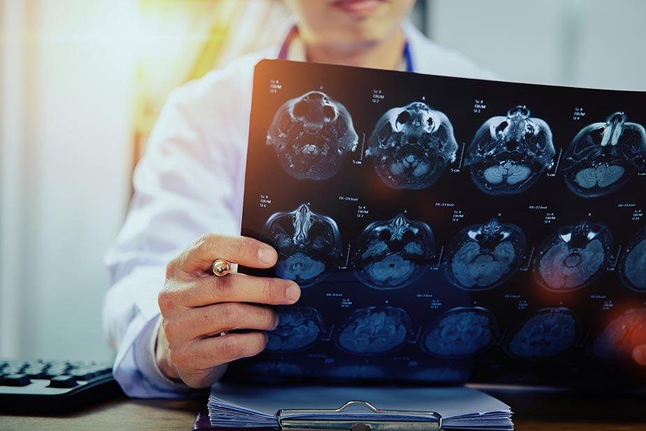 Lekar gleda snimak dobijen MRI aparatom