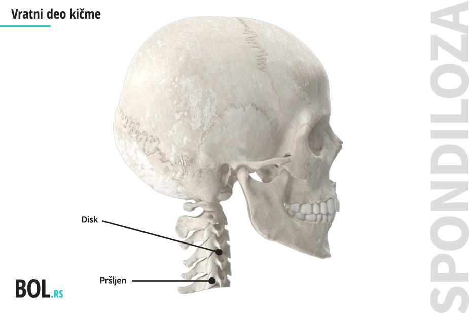 Cervikalna spondiloza - vratni deo kičme